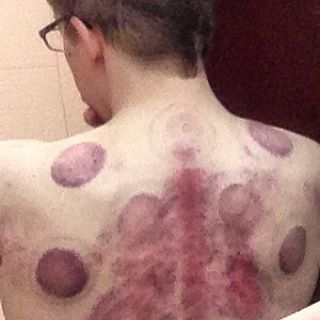 My back after today's massage.